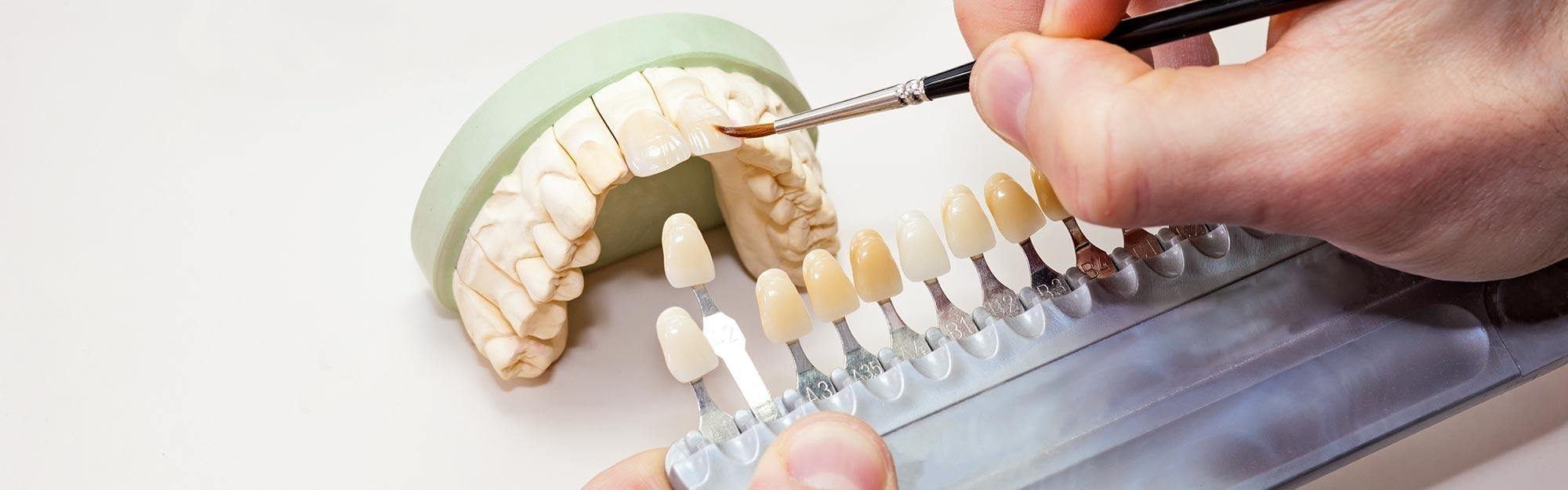Zahntechniker passt Zahnersatz beim Zahnarzt in Bautzen individuell an.